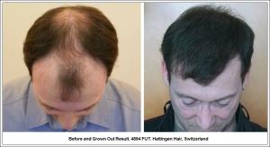 Before and Grown Out Result. 4894 FUT. Hattingen Hair, Switzerland 1